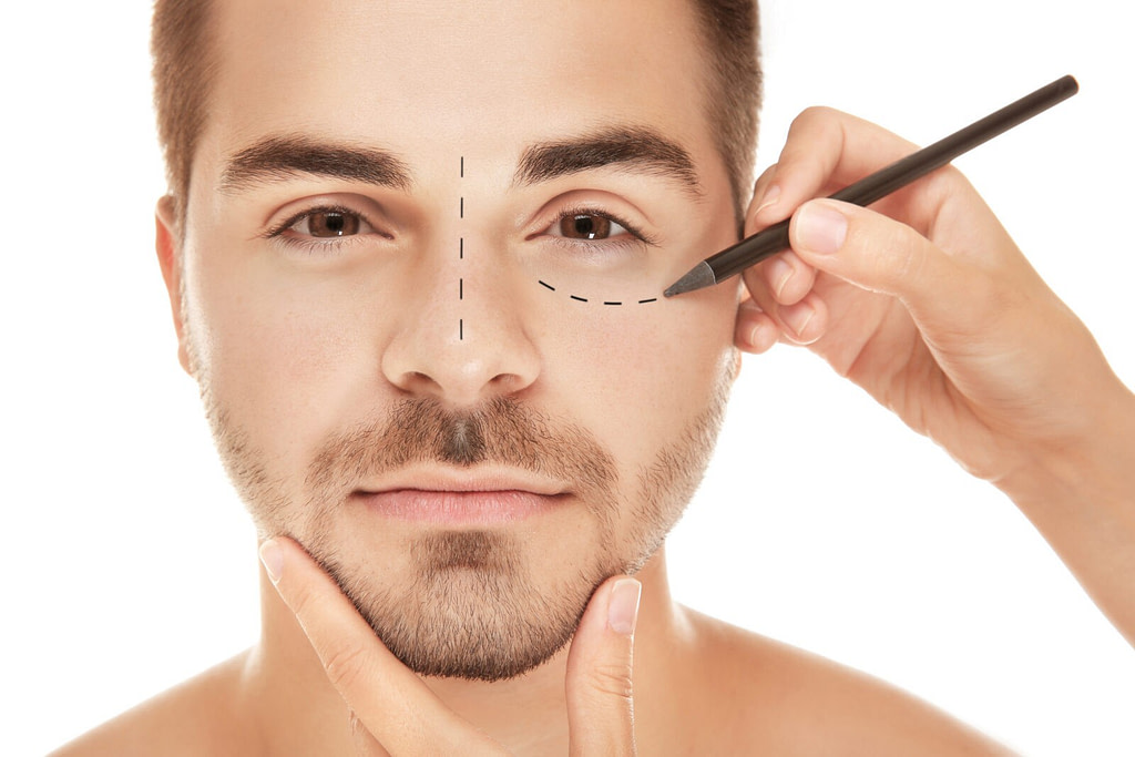 bigstock Surgeon drawing marks on male 169631999