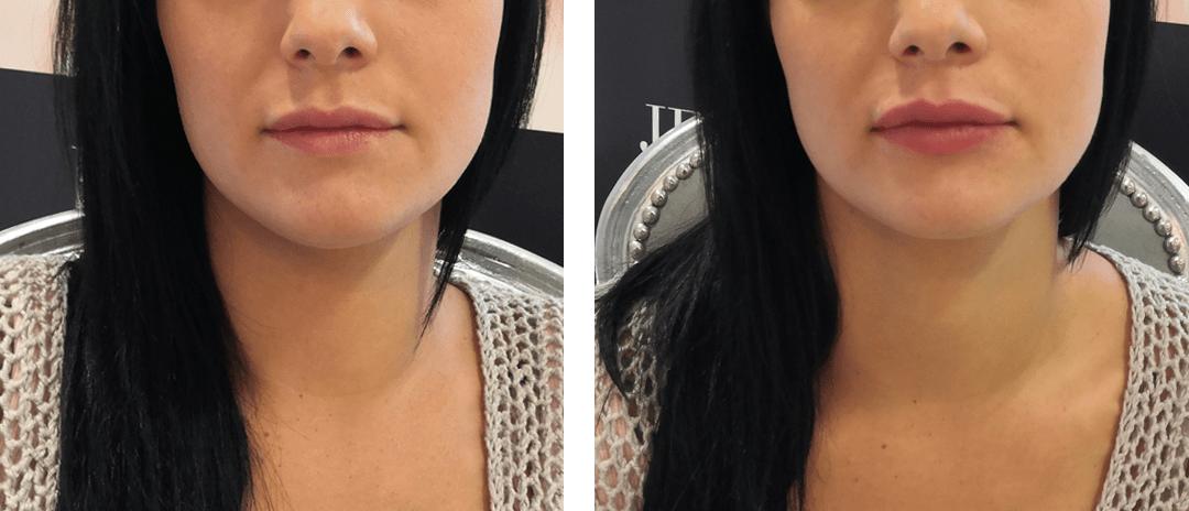 Modelowanie ust kwasem hialuronowym Drzazga Clinic